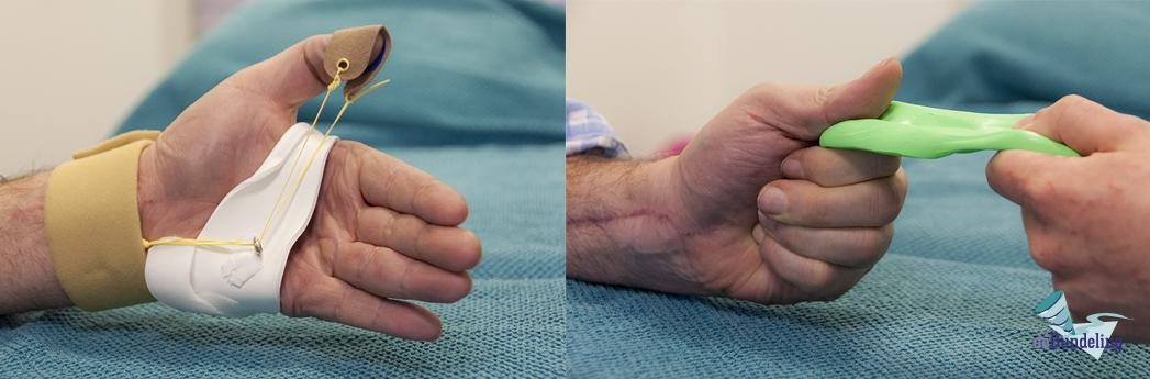 deBundeling_handtherapie